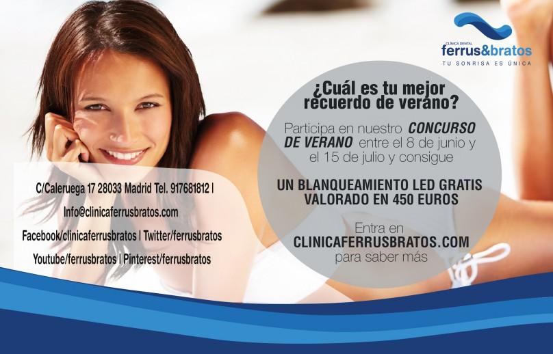 Blanqueamiento_Dental_Luz_LED_Bymyheels